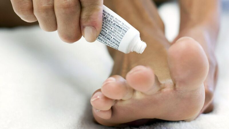 7 tips to prevent or treat nail fungal infection