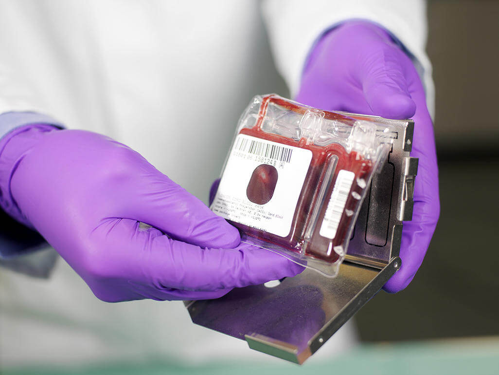 Are You Considering Stem Cell Banking? Here Is What You Need To Know
